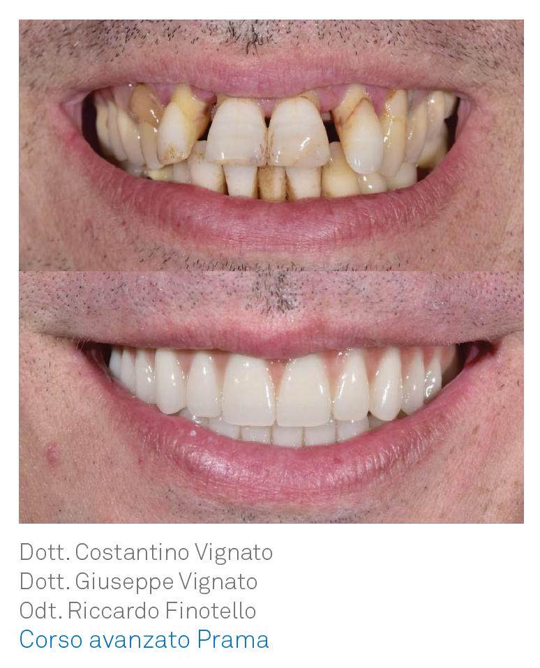 Corso Avanzato Prama - Sweden Martina e dentisti Vignato