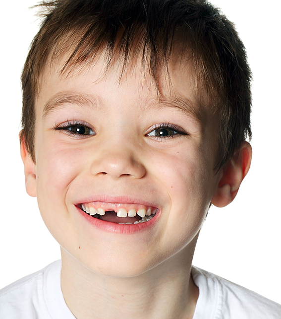 Denti da latte: cura ed estrazione