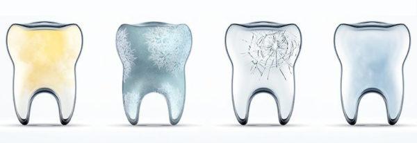 erosione dentale sintomi