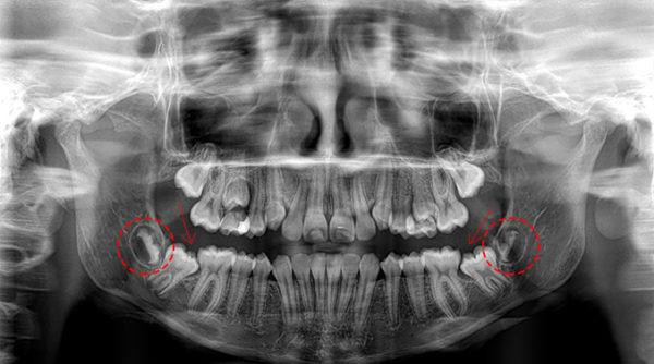 estrazione del dente del giudizio precoce