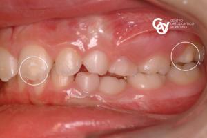 MHI - Ipomineralizzazione dello smalto dentario