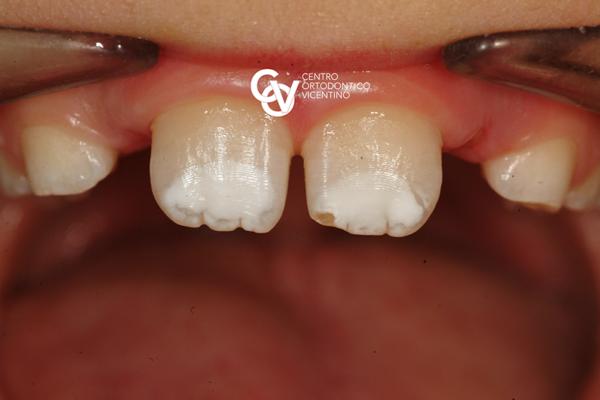 MHI o ipomineralizzazione dello smalto dentario