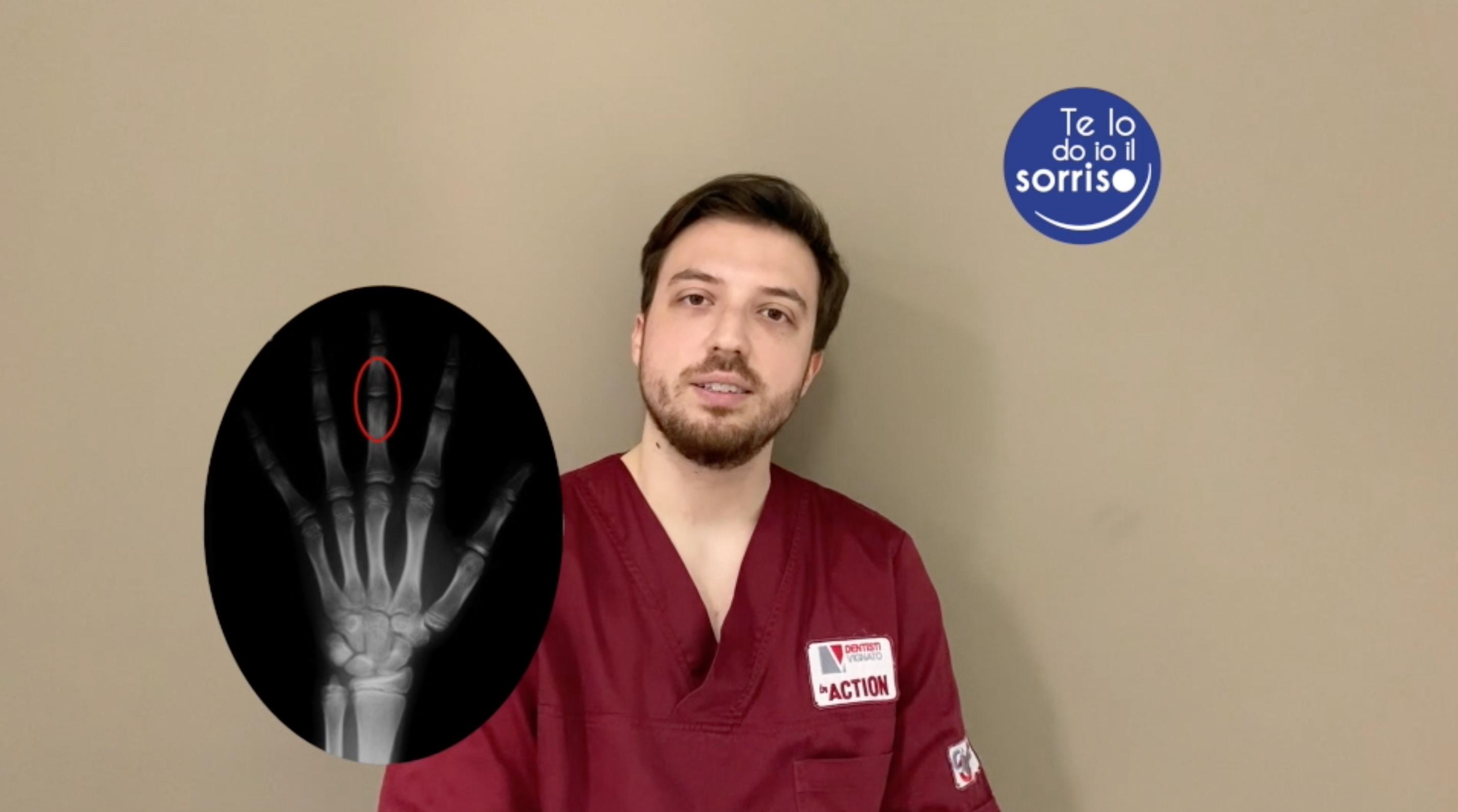 La radiografia al terzo dito della mano in ortodonzia