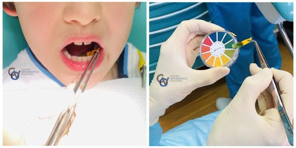 test cariorecettività, test ph saliva
