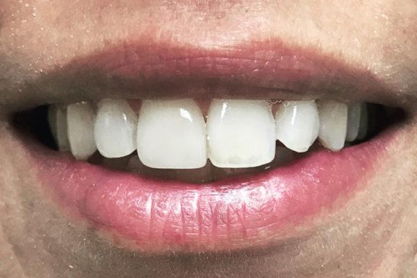 Dentisti Vignato - trattamento white spot - after