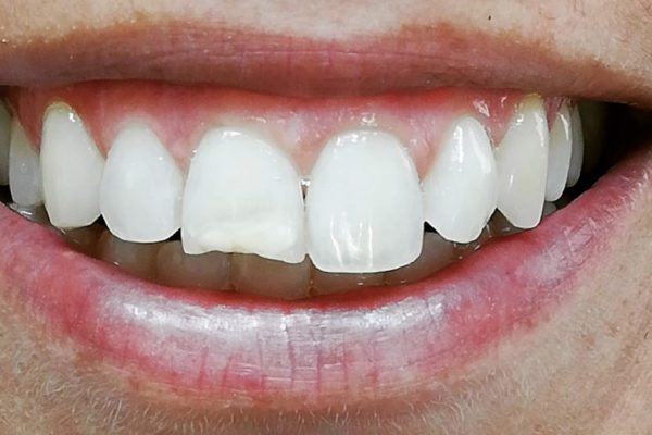 Dentisti Vignato - trattamento White spots _before